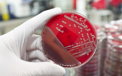 Superbugs – The Growing Problem of Antibiotic Resistant Infections
