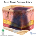 deep tissue pressure injury