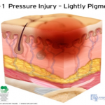stage 1 pressure injury