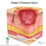 stage 2 pressure injury