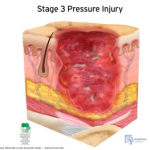 stage 3 pressure injury