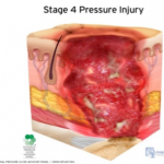 stage 4 pressure injury