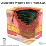 unstageable pressure injury - dark eschu