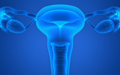What the Mirena IUD Case Means for Expert Testimony
